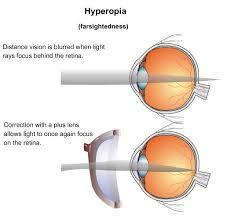 hyperopia eye