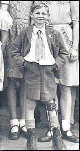 polio leg brace