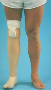 transtibial prosthesis