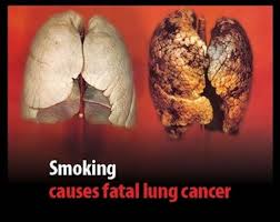 lungs of a smoker pictures