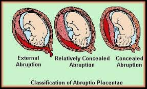 placental separation