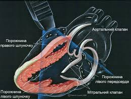 echocardiography heart
