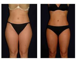 full body liposuction