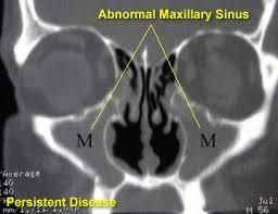 abnormal cat scan