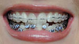 tooth braces