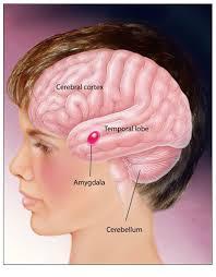 autism brain pictures