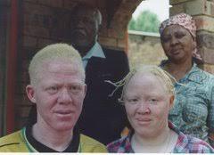 albinism ocular