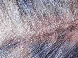 greasy scalp