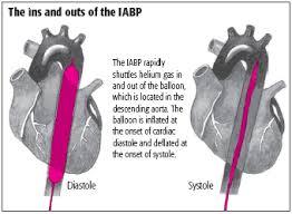aortic balloon pumps