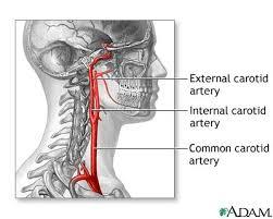 internal carotid arteries