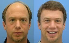 implante cabelo