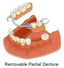 partial false teeth