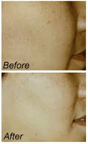 glycolic acid peel results