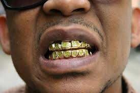 goldteeth