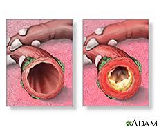 bronquios inflamados