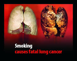 pictures of bad lungs from smoking