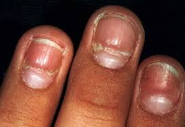 deep ridges in fingernails