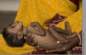 malnutrition picture
