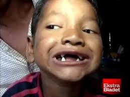 vampires teeth