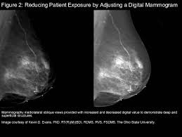 mammography images