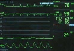 monitoring heart