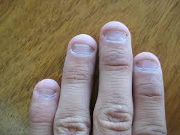finger nail biting