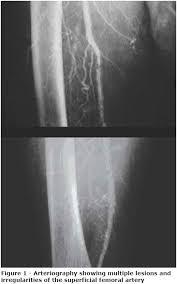 monckeberg arteriosclerosis