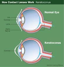 hard contact lense