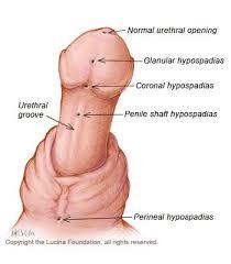 hypospadias pictures