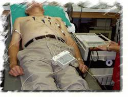 electrocardiogram electrode