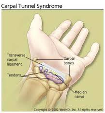 carpal tunnel pictures