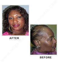 alopecia wig