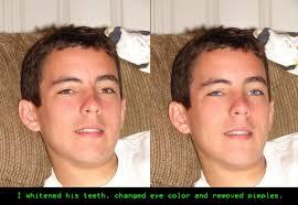 pimple blemish