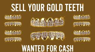 dental gold teeth