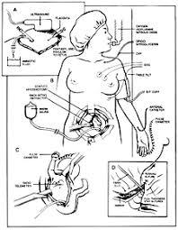 fetal intervention