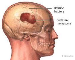 brain bone