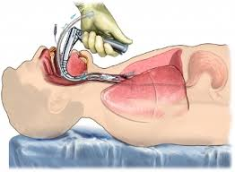 intubation pictures