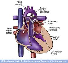 hypoplastic left ventricle