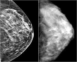 digital mammogram