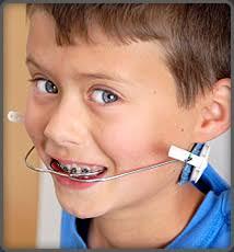 braces and headgear