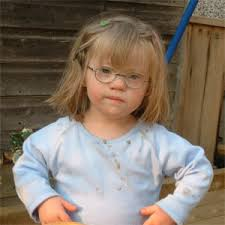 downs syndrome pictures