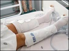 pneumatic compression stockings