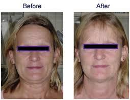 laser on face