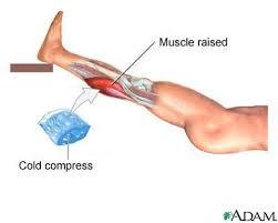 leg muscle strain