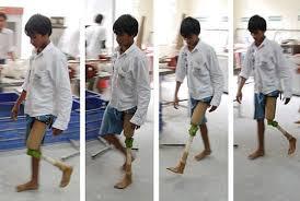 protesis piernas