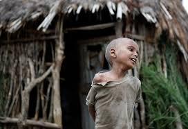 ethiopia malnutrition