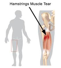 hamstring muscle strain