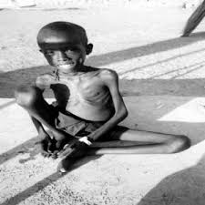 malnourished children photos