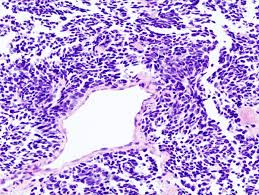 lung cell