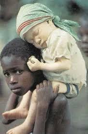albino people pics